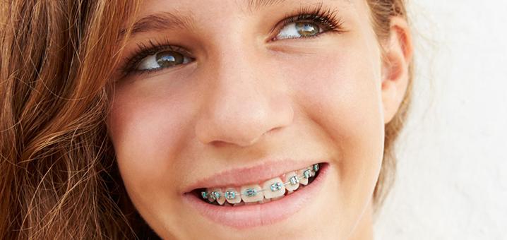 为什么泰国有那么多人戴牙套?